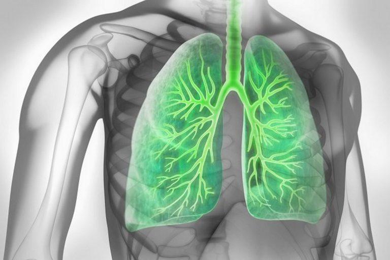 Jak się chronić przed zapaleniem płuc?
