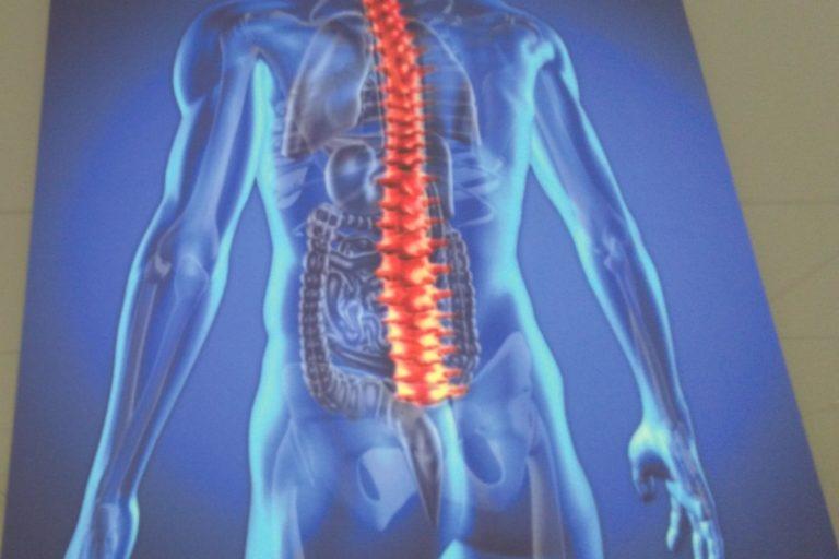 Osteoporoza zbiera równie wysokie żniwo jak koronawirus